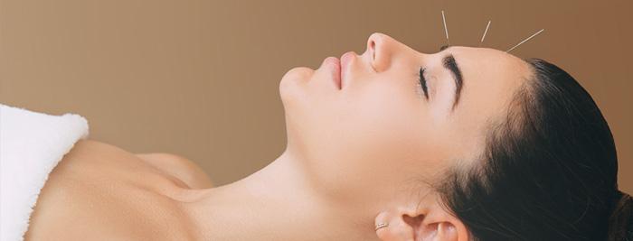 Acupuncture en esthétique